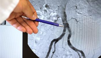 aorte abdominale