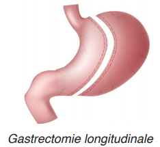 gastrectomie longitudinale