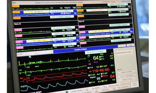 Unité de soins intensifs de cardiologie