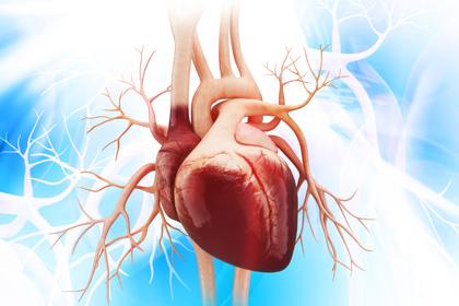 Sténose aortique