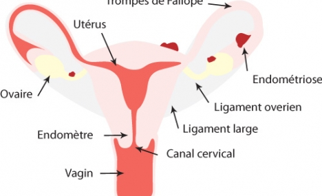 Hystérectomie